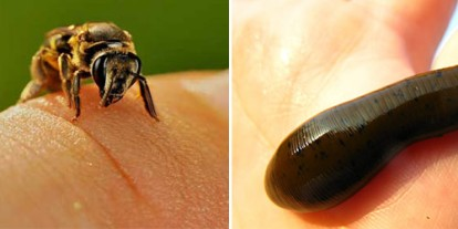 Bee sting, leech suck, painful therapies, insect therapy, massage, ouch sting